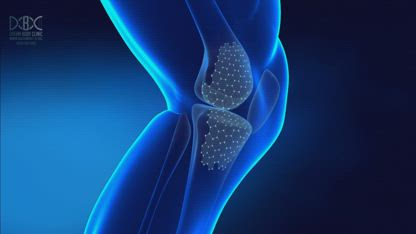 Want to Eliminate Knee Pain? Could Stem Cells be the Answer?